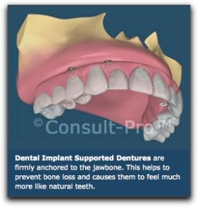 Dental Implant Supported Dentures