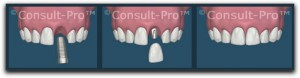dental implants dallas