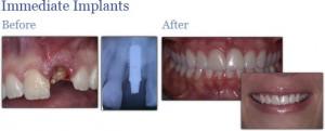 immediateimplants